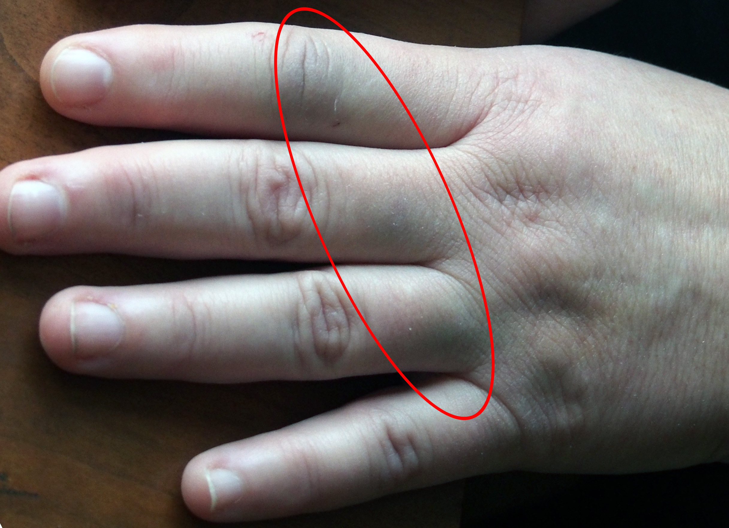 how to help a swollen finger