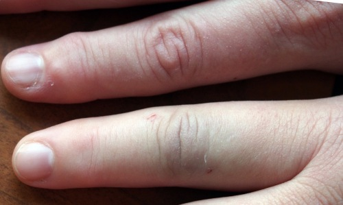 Bottom finger is the swollen one
